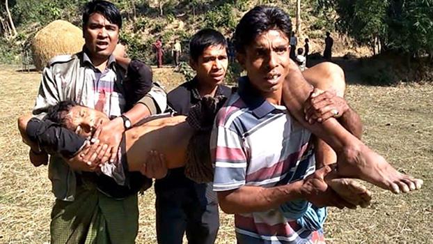ဘူးသီးတောင်မြို့နယ် ထိပ်ထူးပေါက်ကျေးရွာမှာ ပေါက်ကွဲမှုကြောင့် ထိခိုက်ဒဏ်ရာရခဲ့တဲ့  ရွာသားတစ်ဦးကို သယ်ဆောင်လာစဉ်